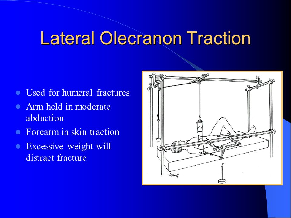 Lateral Olecranon Traction Used for humeral fractures Arm held in moderate abduction Forearm in skin traction Excessive weight will distract fracture