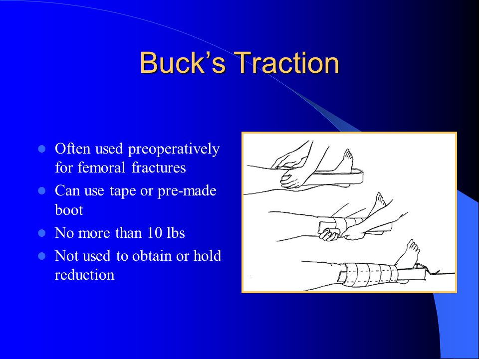 Buck's Traction Often used preoperatively for femoral fractures Can use tape or pre-made boot No more than 10 lbs Not used to obtain or hold reduction