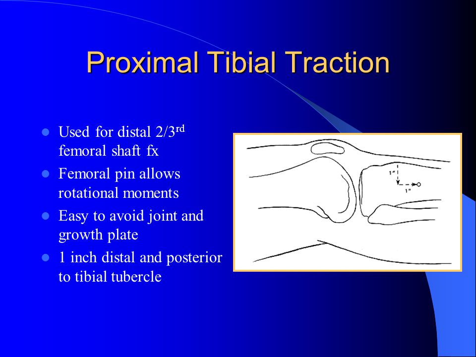Proximal Tibial Traction Used for distal 2/3 rd femoral shaft fx Femoral pin allows rotational moments Easy to avoid joint and growth plate 1 inch dis