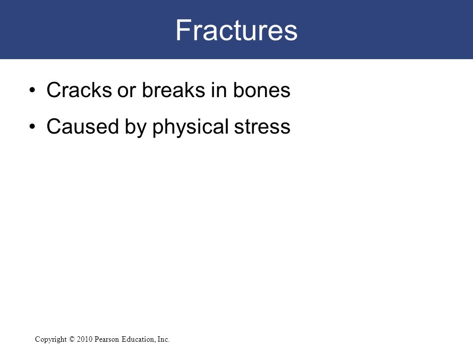 Copyright © 2010 Pearson Education, Inc. Fractures Cracks or breaks in bones Caused by physical stress