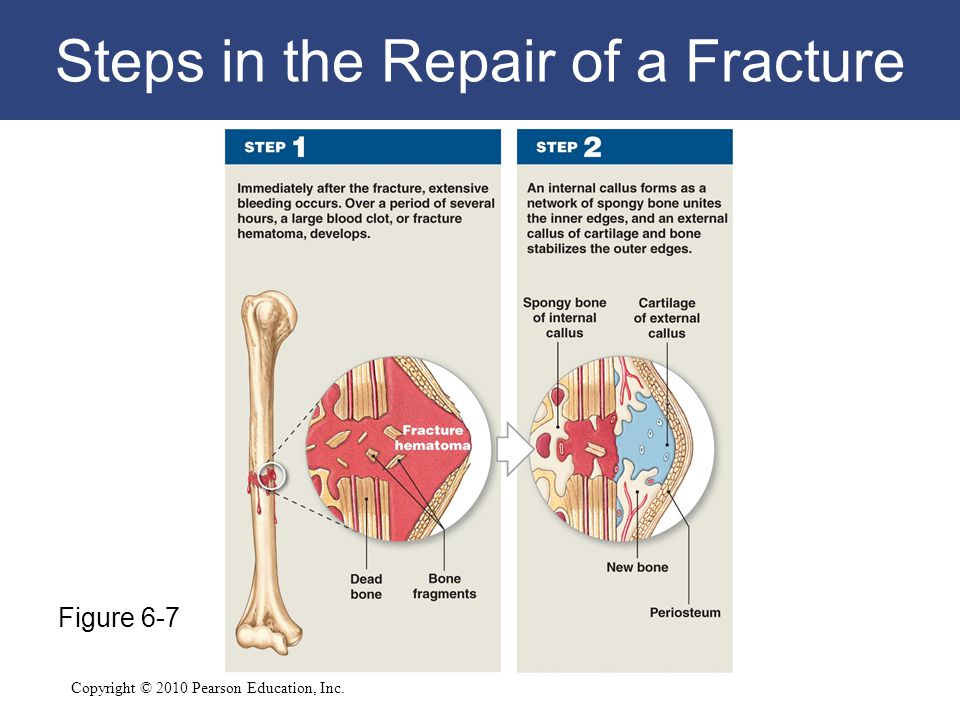 Copyright © 2010 Pearson Education, Inc. Steps in the Repair of a Fracture Figure 6-7