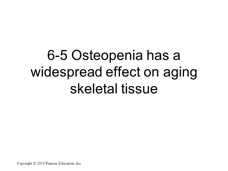 Copyright © 2010 Pearson Education, Inc. 6-5 Osteopenia has a widespread effect on aging skeletal tissue