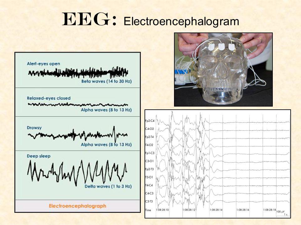 Eeg: Electroencephalogram