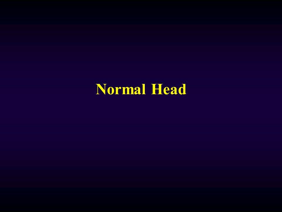 4th Quad 3rd Suprasellar Review: Temp Horn