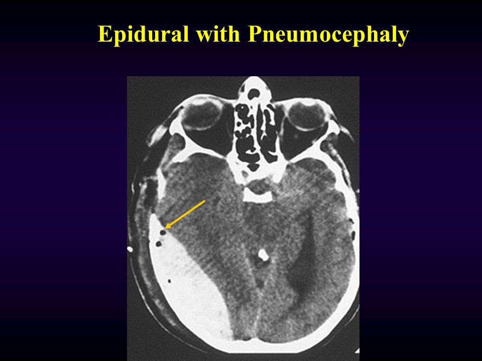 Very Small Epidural Hematoma with fracture
