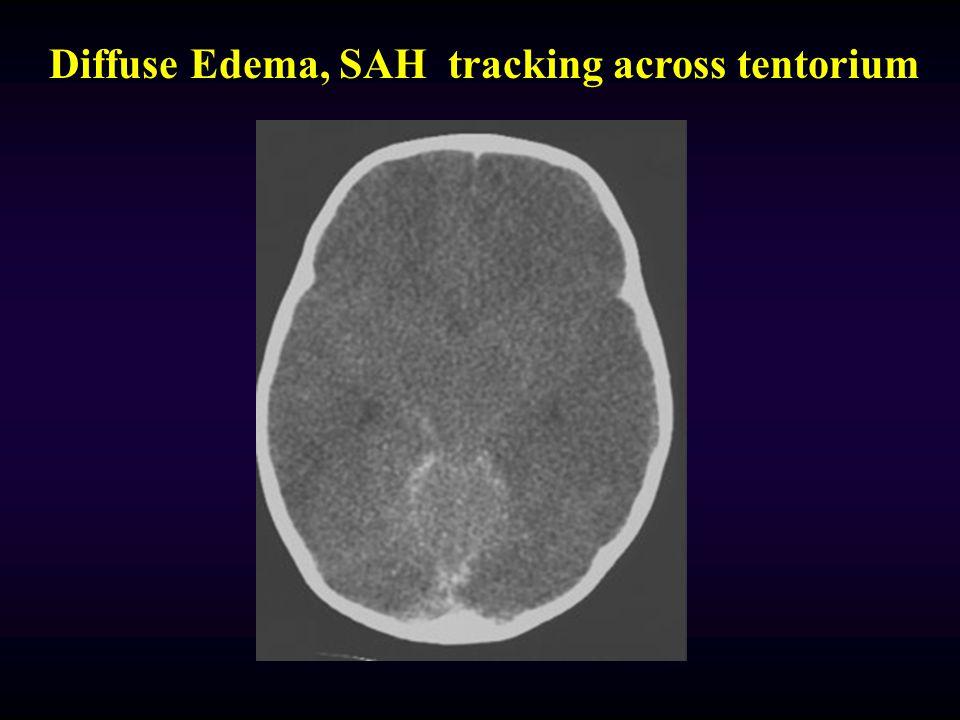 Epidural Enlarged Temporal Horn