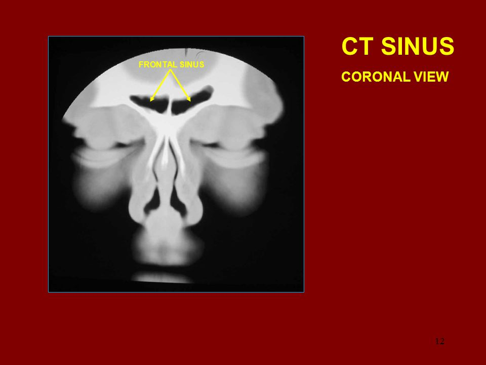 CT SINUS CORONAL VIEW FRONTAL SINUS 12