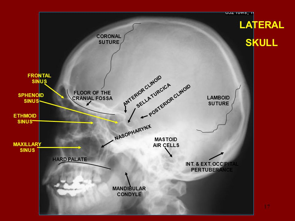 LATERAL SKULL CORONAL SUTURE LAMBOID SUTURE INT. & EXT. OCCIPITAL PERTUBERANCE MASTOID AIR CELLS HARD PALATE NASOPHARYNX ANTERIOR CLINOID POSTERIOR CL