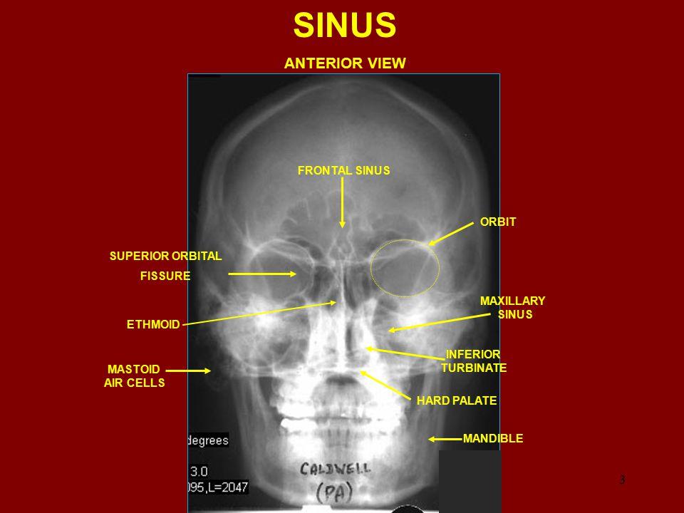 FRONTAL SINUS MAXILLARY SINUS MANDIBLE MAXILLA ETHMOID SINUS SELLA TURCICA SPHENOID SINUS LATERAL SINUS 4 ANT AND POST CLINOID