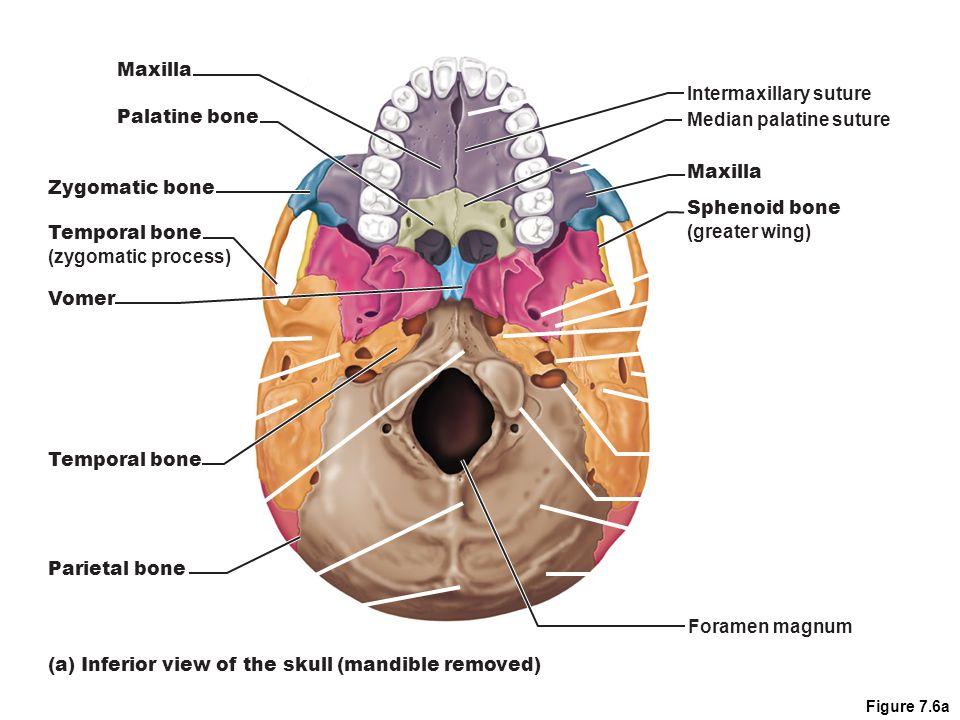 Figure 7.6a Median palatine suture Intermaxillary suture Maxilla Sphenoid bone (greater wing) Foramen magnum Maxilla Zygomatic bone Temporal bone (zygomatic process) Vomer (a) Inferior view of the skull (mandible removed) Temporal bone Parietal bone Palatine bone