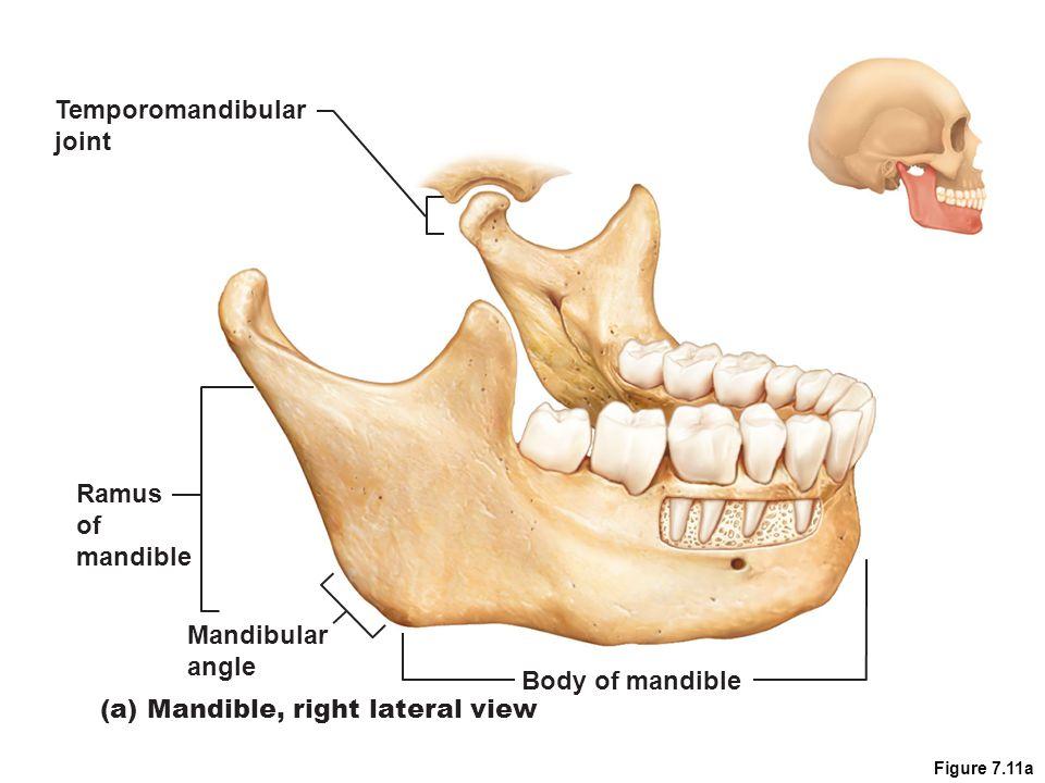 Figure 7.11a Mandibular angle Ramus of mandible Body of mandible (a) Mandible, right lateral view Temporomandibular joint