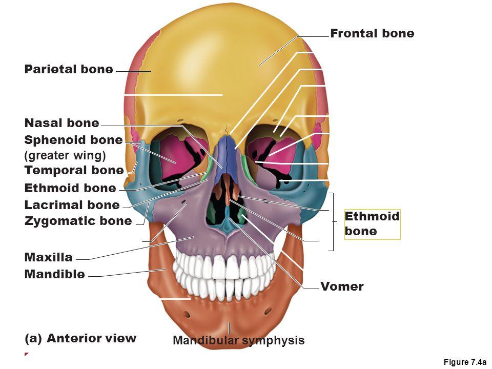 Figure 7.4a Parietal bone Nasal bone Sphenoid bone (greater wing) Temporal bone Ethmoid bone Lacrimal bone Zygomatic bone Maxilla Mandible (a) Anterior view Mandibular symphysis Frontal bone Vomer Ethmoid bone