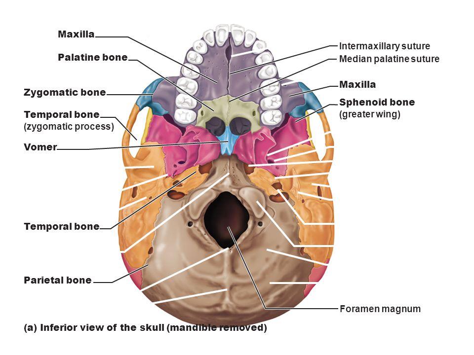 Zygomatic Bone Maxillary Process Maxilla Zygomatic bone