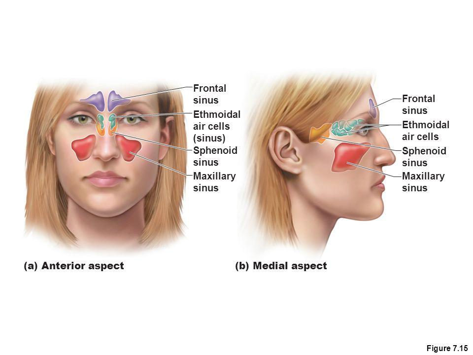 Figure 7.15 Frontal sinus Ethmoidal air cells (sinus) Maxillary sinus Sphenoid sinus Frontal sinus Ethmoidal air cells Maxillary sinus Sphenoid sinus (a) Anterior aspect (b) Medial aspect