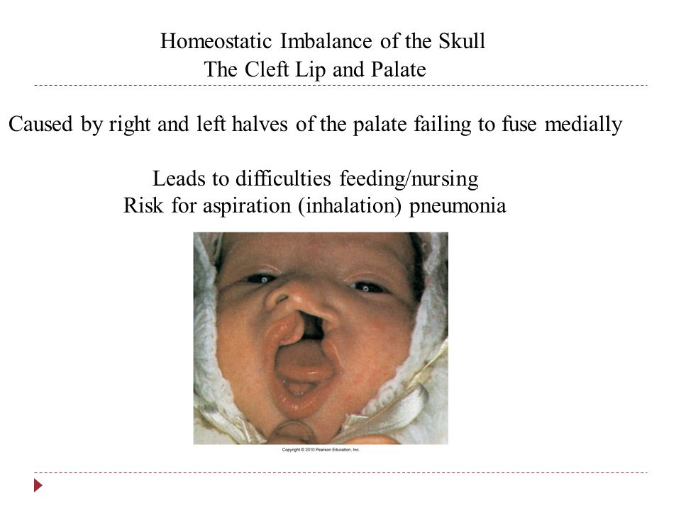 Homeostatic Imbalance of the Skull The Cleft Lip and Palate Caused by right and left halves of the palate failing to fuse medially Leads to difficulties feeding/nursing Risk for aspiration (inhalation) pneumonia