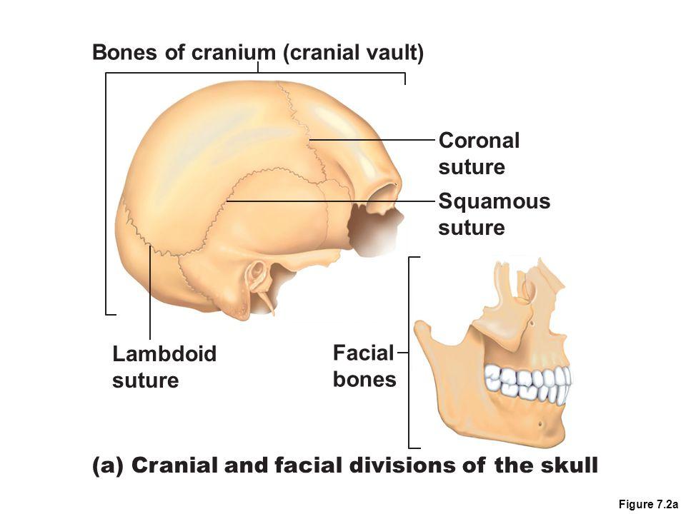 Figure 7.2a Bones of cranium (cranial vault) Lambdoid suture Facial bones Squamous suture (a) Cranial and facial divisions of the skull Coronal suture