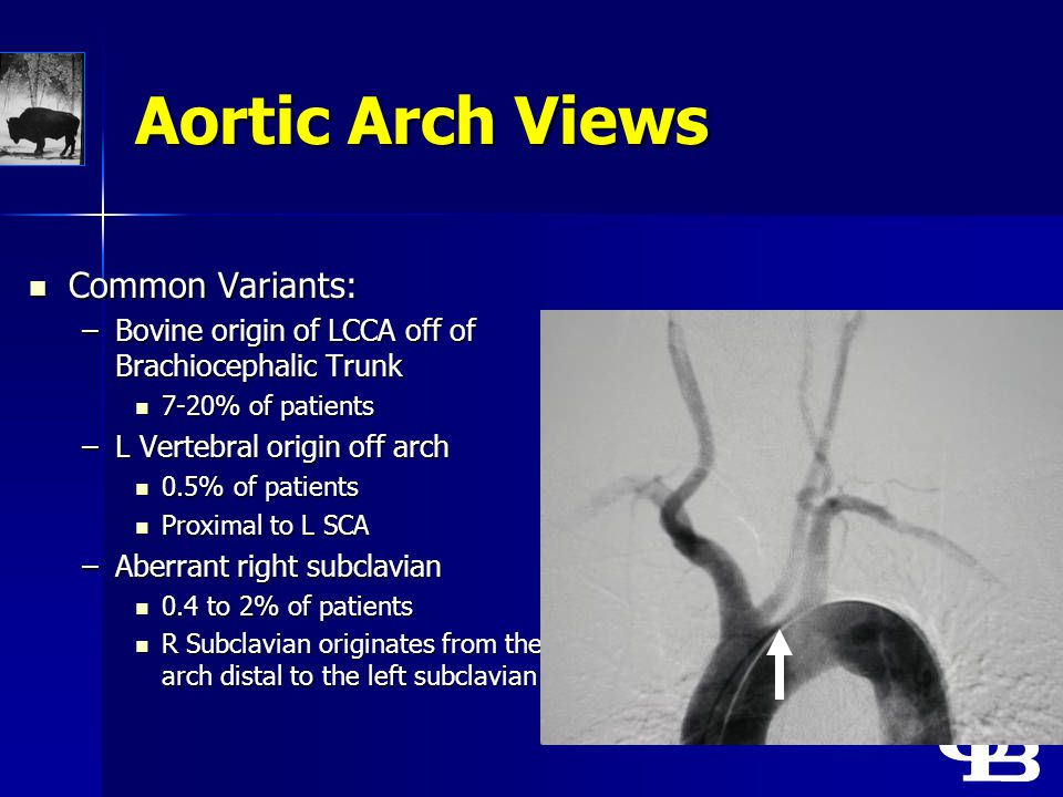 Aortic Arch Views Common Variants: Common Variants: –Bovine origin of LCCA off of Brachiocephalic Trunk 7-20% of patients 7-20% of patients –L Vertebr