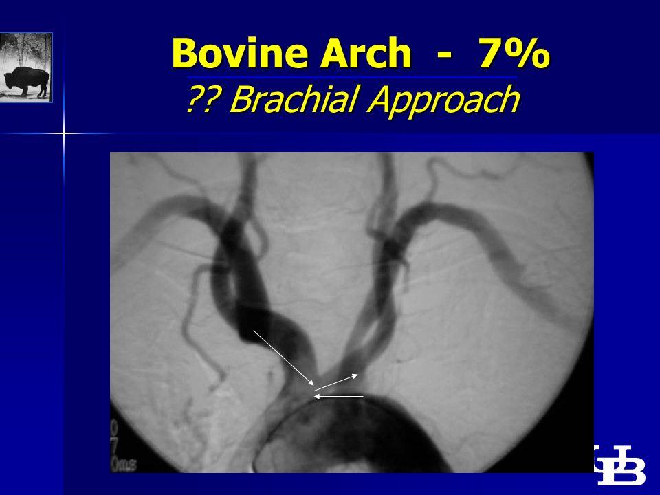 Bovine Arch - 7% Brachial Approach Bovine Arch - 7% Brachial Approach