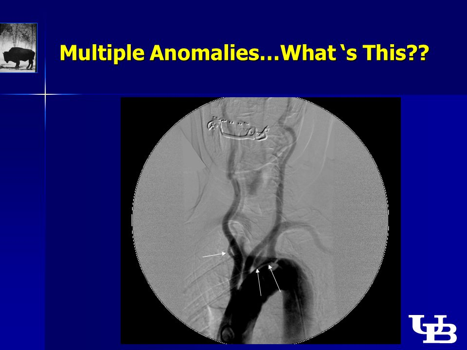 Multiple Anomalies…What 's This??