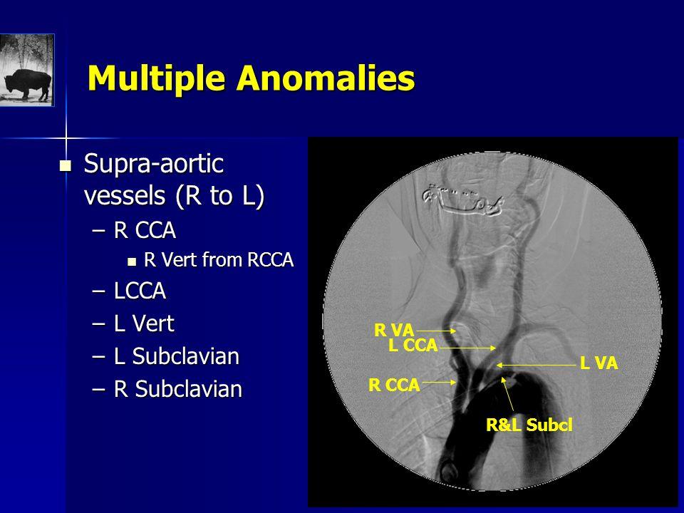 Supra-aortic vessels (R to L) Supra-aortic vessels (R to L) –R CCA R Vert from RCCA R Vert from RCCA –LCCA –L Vert –L Subclavian –R Subclavian Multiple Anomalies R CCA R VA L CCA L VA R&L Subcl
