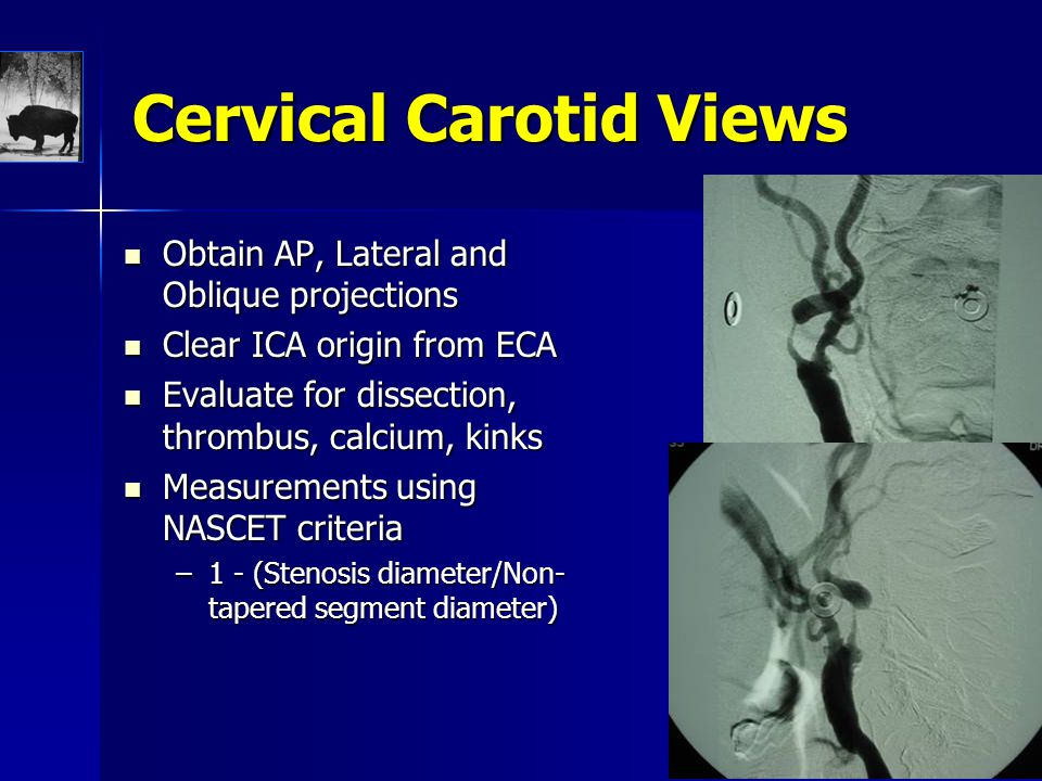 Cervical Carotid Views Obtain AP, Lateral and Oblique projections Obtain AP, Lateral and Oblique projections Clear ICA origin from ECA Clear ICA origi