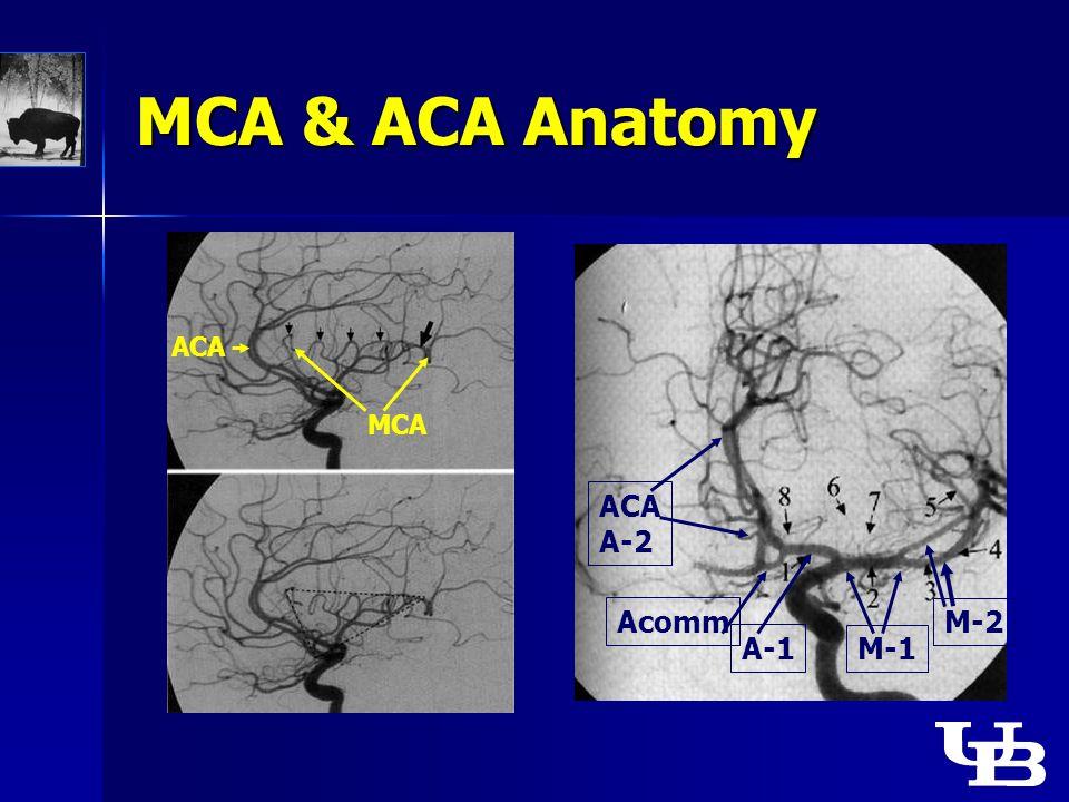 MCA & ACA Anatomy ACA MCA M-1 M-2 ACA A-2 Acomm A-1