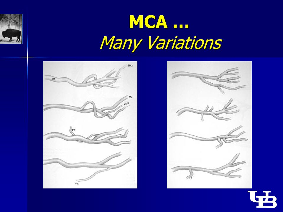 MCA … Many Variations