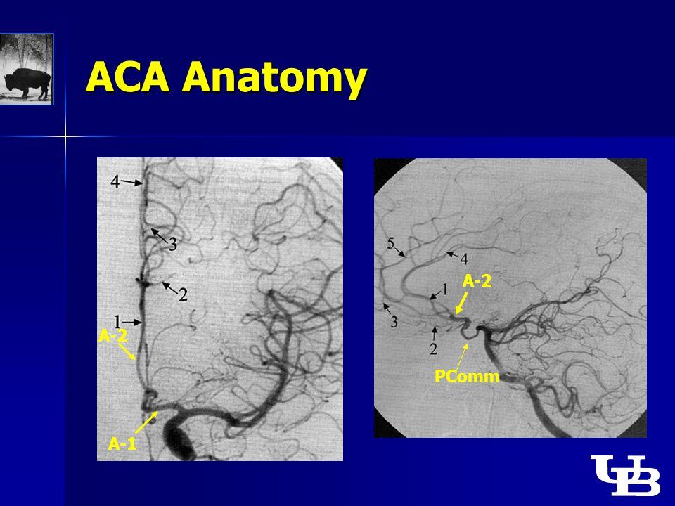 ACA Anatomy A-1 A-2 PComm