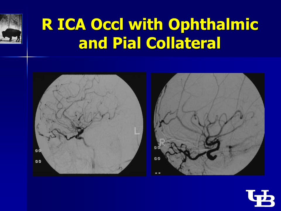 R ICA Occl with Ophthalmic and Pial Collateral