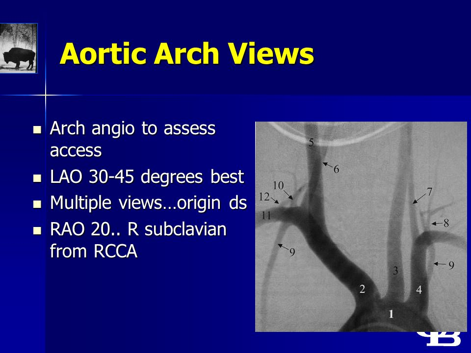 Aortic Arch Views Arch angio to assess access Arch angio to assess access LAO 30-45 degrees best LAO 30-45 degrees best Multiple views…origin ds Multi