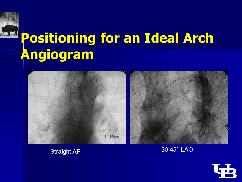 Positioning for an Ideal Arch Angiogram Straight AP 30-45° LAO