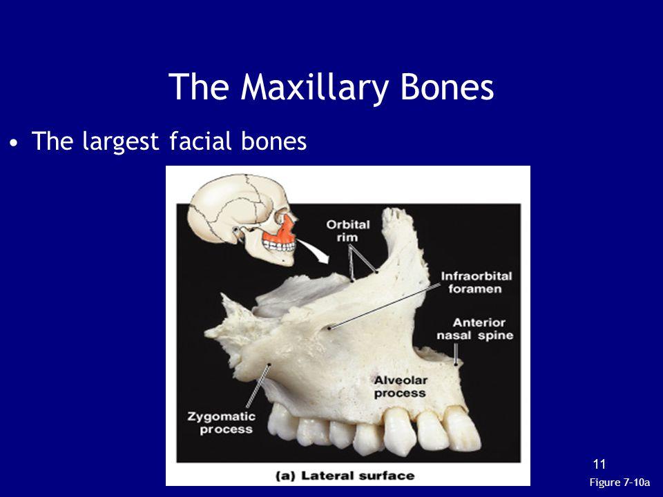 The Maxillary Bones The largest facial bones Figure 7–10a 11