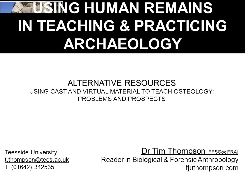 USING HUMAN REMAINS IN TEACHING & PRACTICING ARCHAEOLOGY ALTERNATIVE RESOURCES USING CAST AND VIRTUAL MATERIAL TO TEACH OSTEOLOGY: PROBLEMS AND PROSPECTS Dr Tim Thompson FFSSoc FRAI Reader in Biological & Forensic Anthropology tjuthompson.com Teesside University t.thompson@tees.ac.uk T: (01642) 342535