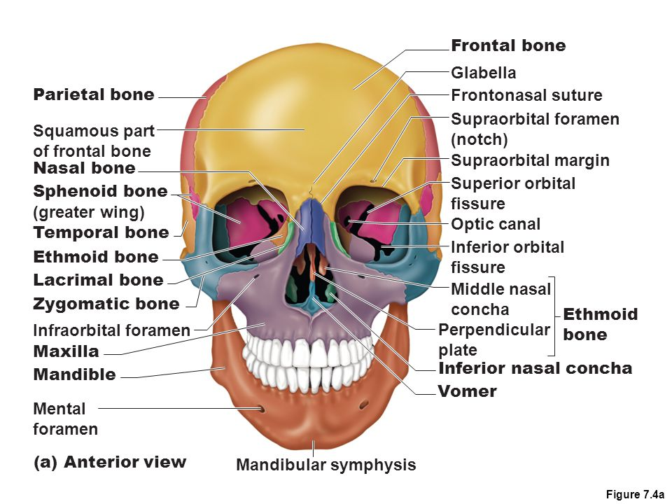 Figure 7.4a Parietal bone Squamous part of frontal bone Nasal bone Sphenoid bone (greater wing) Temporal bone Ethmoid bone Lacrimal bone Zygomatic bon
