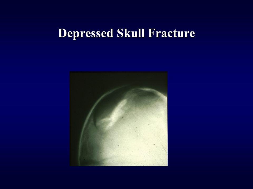 Depressed Skull Fracture