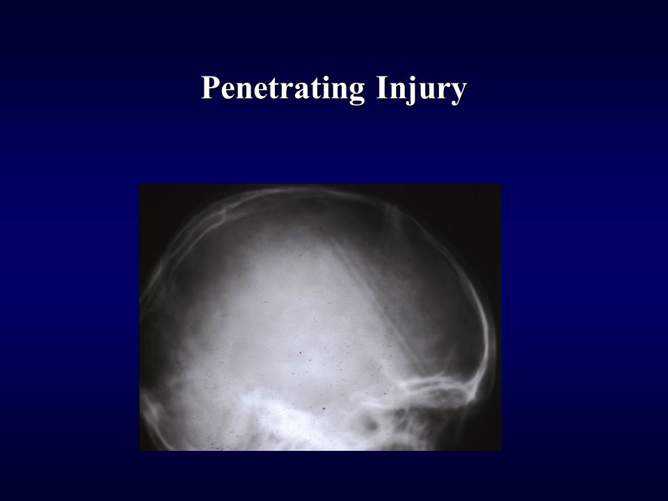Penetrating Injury