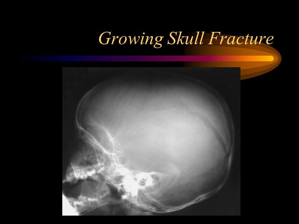 Growing Skull Fracture
