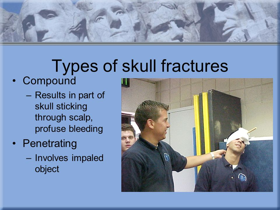 Types of skull fractures Compound –Results in part of skull sticking through scalp, profuse bleeding Penetrating –Involves impaled object