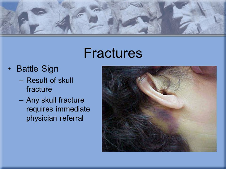Fractures Battle Sign –Result of skull fracture –Any skull fracture requires immediate physician referral