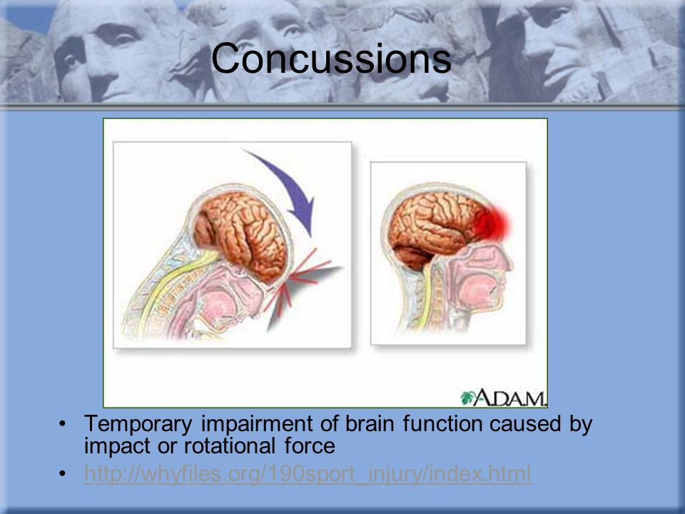 Concussions Temporary impairment of brain function caused by impact or rotational force http://whyfiles.org/190sport_injury/index.html