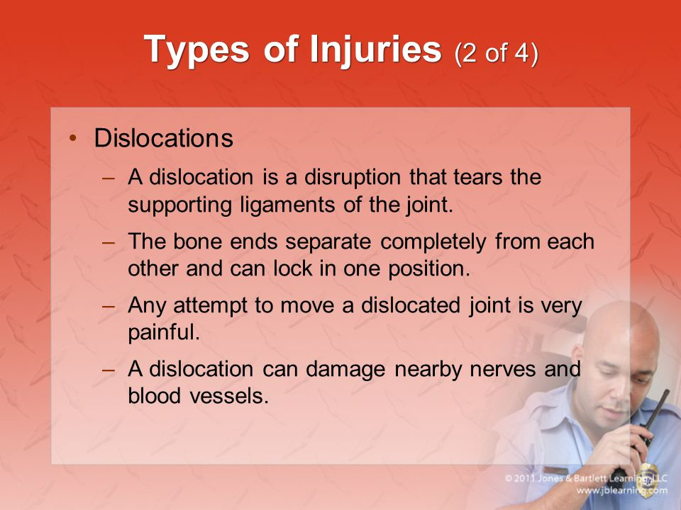 Types of Injuries (2 of 4) Dislocations –A dislocation is a disruption that tears the supporting ligaments of the joint. –The bone ends separate compl