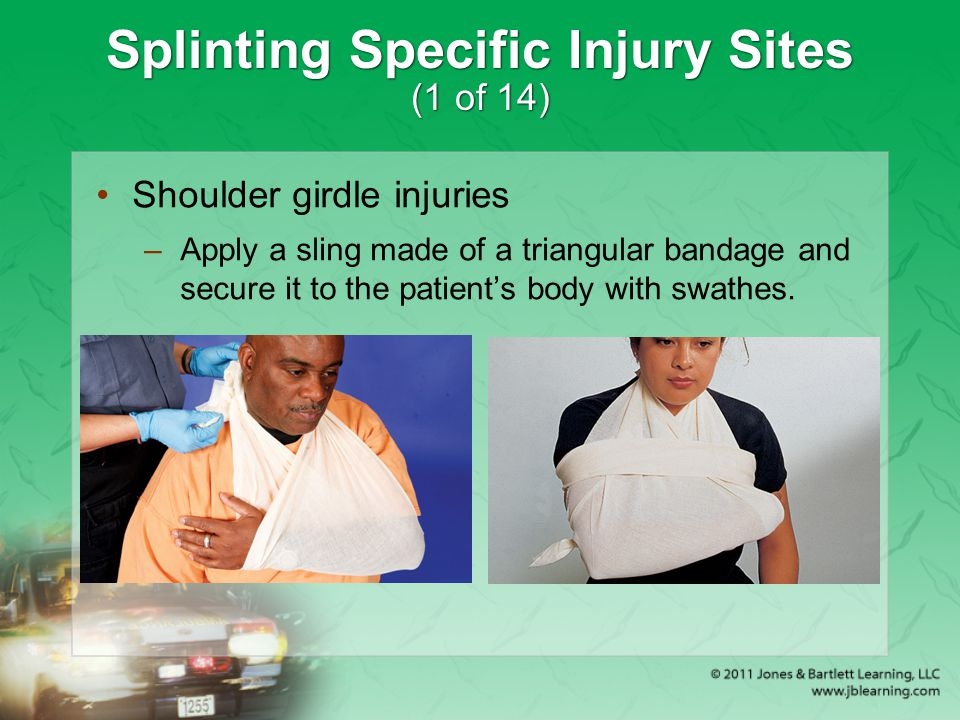 Splinting Specific Injury Sites (1 of 14) Shoulder girdle injuries –Apply a sling made of a triangular bandage and secure it to the patient's body wit