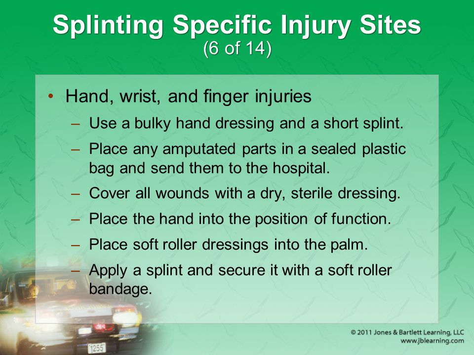 Splinting Specific Injury Sites (6 of 14) Hand, wrist, and finger injuries –Use a bulky hand dressing and a short splint. –Place any amputated parts i