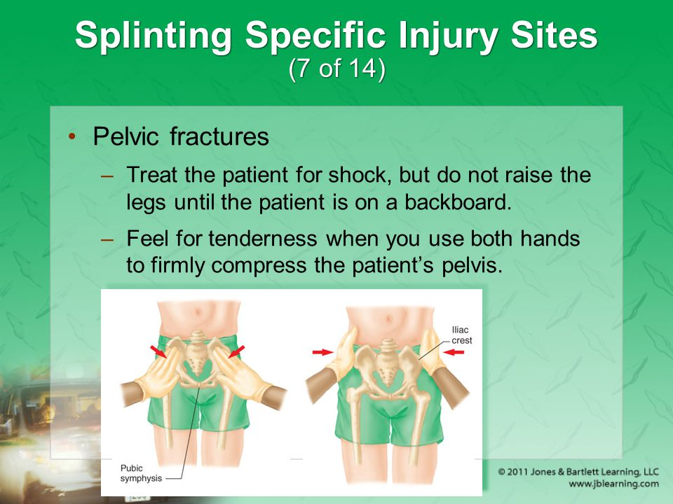 Splinting Specific Injury Sites (7 of 14) Pelvic fractures –Treat the patient for shock, but do not raise the legs until the patient is on a backboard