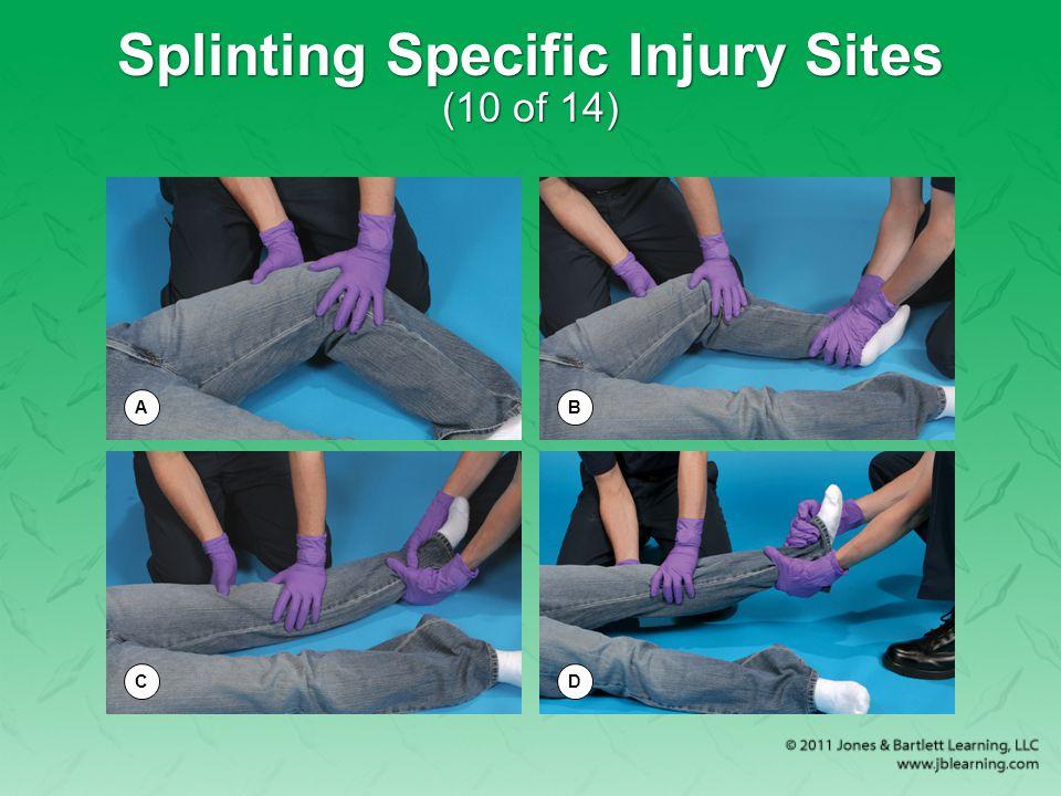 Splinting Specific Injury Sites (10 of 14) AB CD