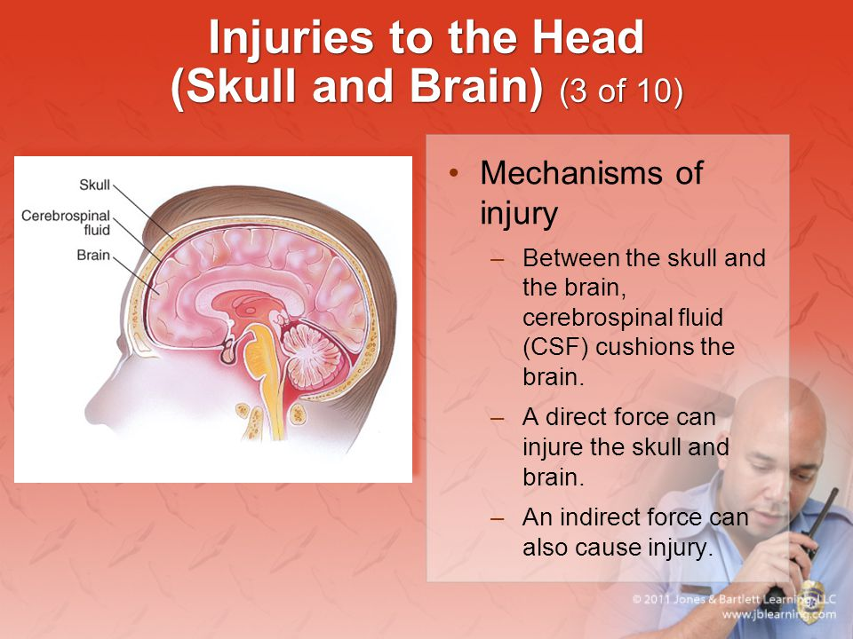 Injuries to the Head (Skull and Brain) (3 of 10) Mechanisms of injury –Between the skull and the brain, cerebrospinal fluid (CSF) cushions the brain.