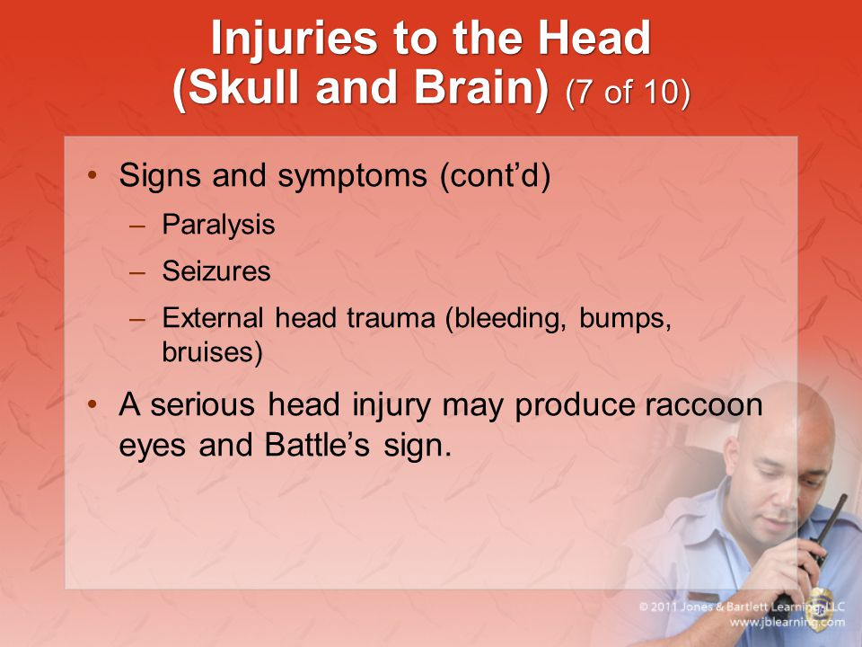 Injuries to the Head (Skull and Brain) (7 of 10) Signs and symptoms (cont'd) –Paralysis –Seizures –External head trauma (bleeding, bumps, bruises) A s