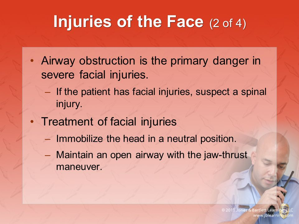 Injuries of the Face (2 of 4) Airway obstruction is the primary danger in severe facial injuries. –If the patient has facial injuries, suspect a spina