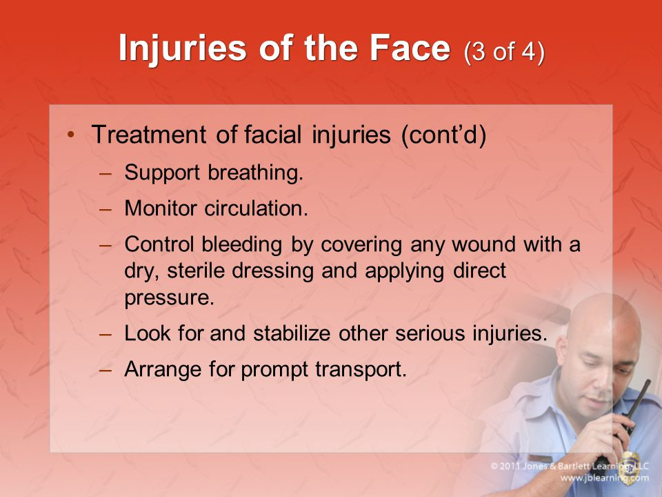 Injuries of the Face (3 of 4) Treatment of facial injuries (cont'd) –Support breathing. –Monitor circulation. –Control bleeding by covering any wound