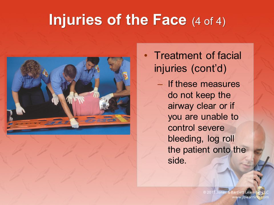 Injuries of the Face (4 of 4) Treatment of facial injuries (cont'd) –If these measures do not keep the airway clear or if you are unable to control se